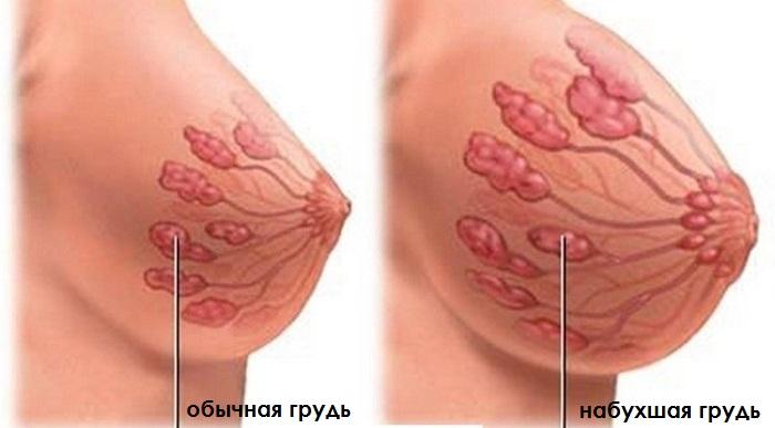 Ореолы потемнели не беременна 9